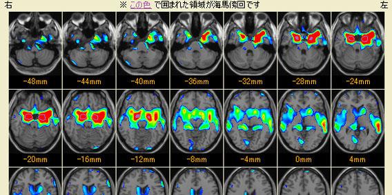 脳の萎縮度検査(VSRAD)