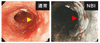 NBI(Narrow Band Imaging:狭帯域光観察)システムを導入